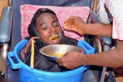 少女患怪病 常年生活在盆中