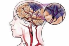 预防脑卒中 排查颈部动脉狭窄